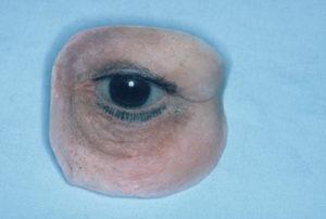 athens ocular prostheseis 1