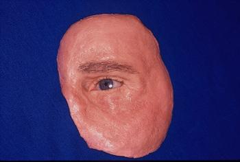 athens ocular prostheseis 2