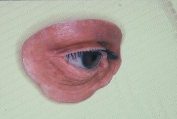 athens ocular prostheseis 3