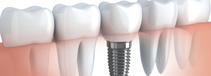 For what conditions may dental implants be the best solution?