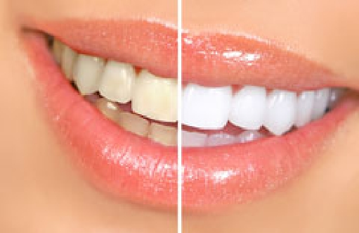 Bleaching and Whitening