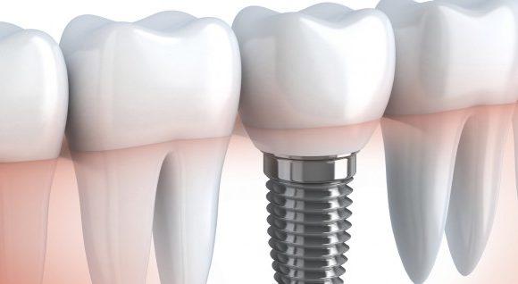 Σε ποιες καταστάσεις αποτελούν τα οδοντικά εμφυτεύματα την καλύτερη λύση;