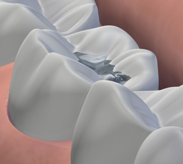 Are amalgam (silver) fillings safe?