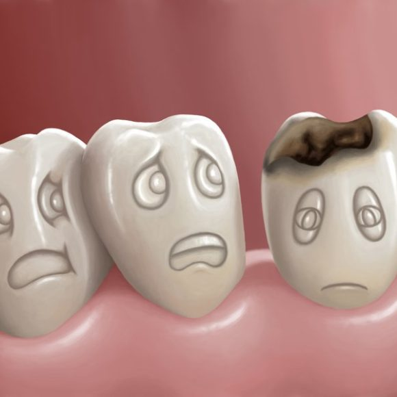 How can we prevent cavities and remineralize tooth enamel ?