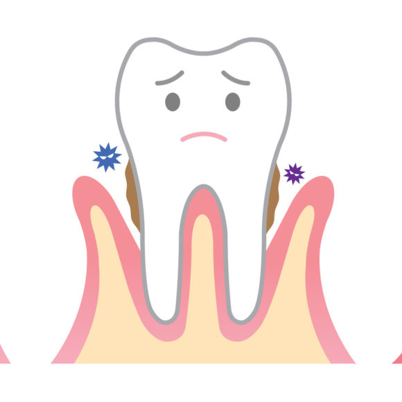 Can gum disease be serious for my health ?