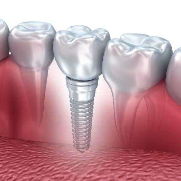 Πώς μπορούμε να έχουμε επιτυχή οδοντικά εμφυτεύματα στο στόμα μας;